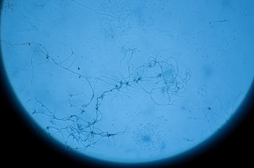 摄影器材杀手 浅析霉菌对摄影镜头的危害